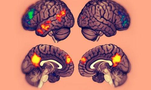 Psicoterapia e cambiamenti nel cervello: studi condotti sui disturbi di ansia